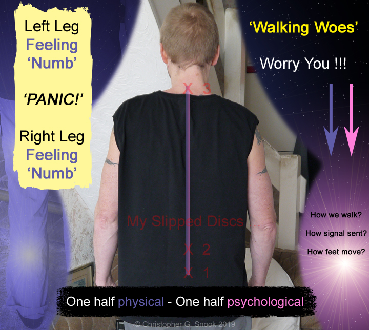 Slipped Disc 'trouble walking' - one half physical 'numb legs' other half psychological 'how do we walk'?